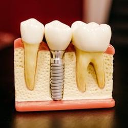 AAID LifeSmiles - Dental Implant - Example-1-1-1