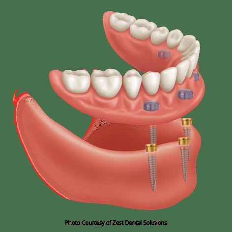 Photo Courtesy of Zest Dental Solutions