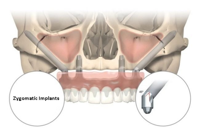 Dr. Ramsey Amin DDS - Zygomatic Implants